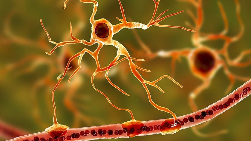 New thinking on Parkinson's disease Research into the function of astrocyte cells in the brain.