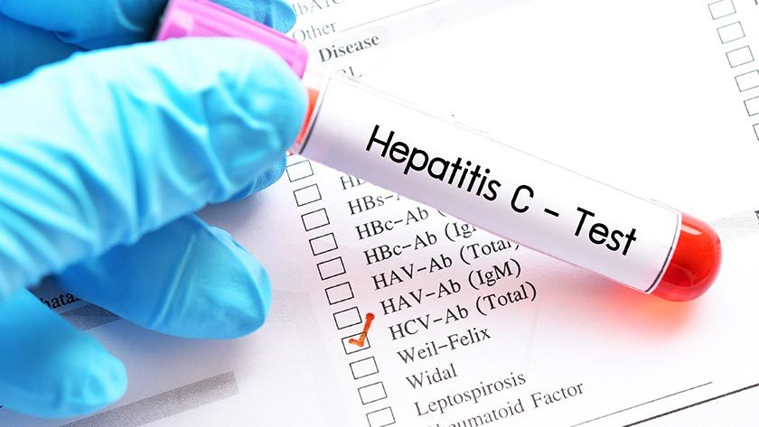 Providing equitable, appropriate care for those with hepatitis C People living with hepatitis C are still subject to stigma and discrimination.